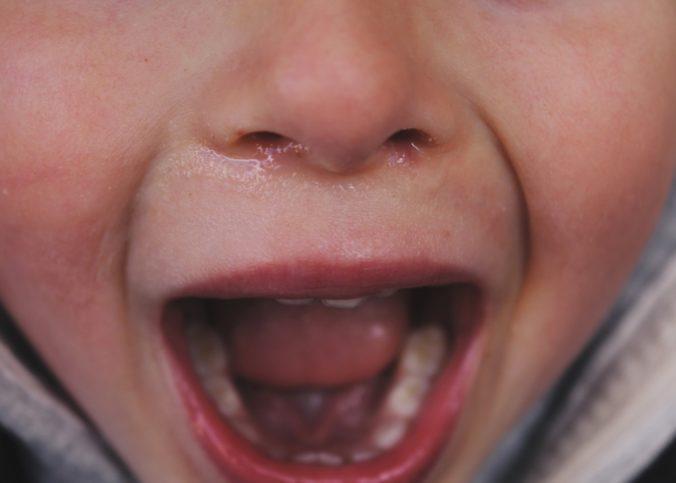 Un enfant qui pleure, la bouche ouverte